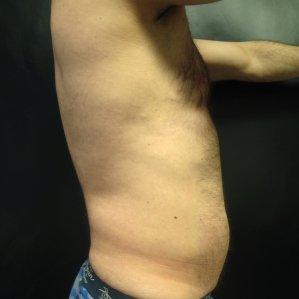 Manhattan liposuction after 17